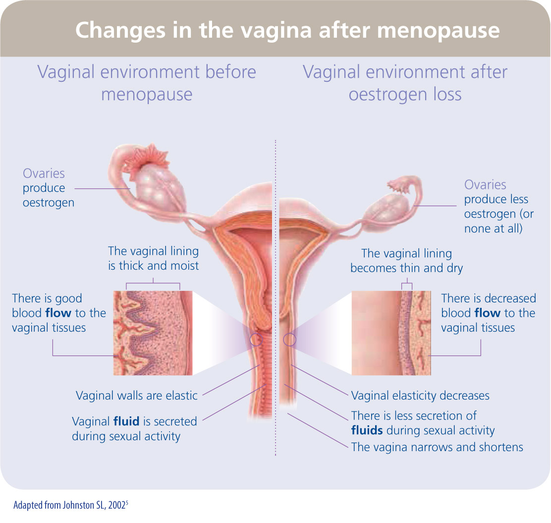 Table showing vaginal changes
